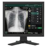 呼吸器疾患(呼吸器科)